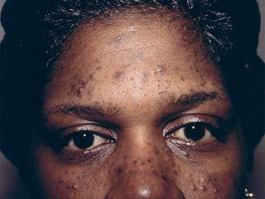 Eosinophilic pustular folliculitis in a patient in