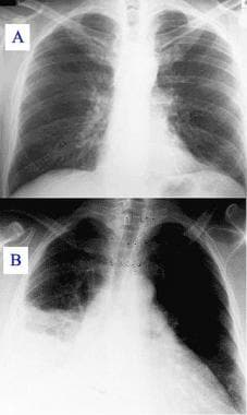 A: Chest radiograph with normal findings. B: Chest