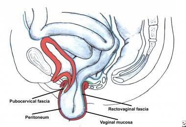 Enterocele and massive vaginal eversion. Progressi