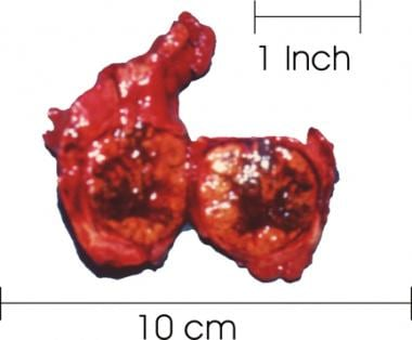 The right lobe of the thyroid was sectioned and re