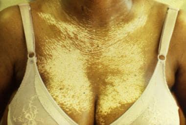 Anterior chest demonstrating salt-and-pepper hypop