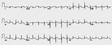 A 12-lead ECG from a patient with bacterial perica