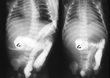 These 2 lower GI series show the cecum (arrows) in