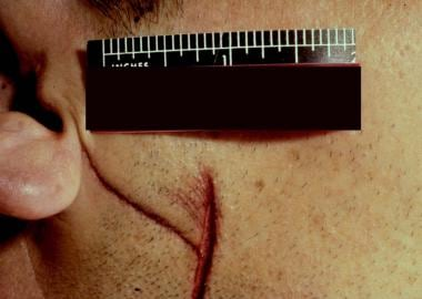 This stab wound of the cheek has a superficial cur
