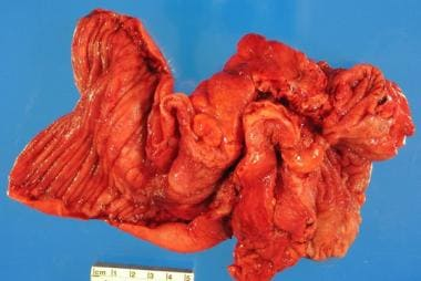 Opened small bowel in a patient with Crohn disease