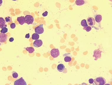 Megakaryoblasts of pediatric acute megakaryoblasti