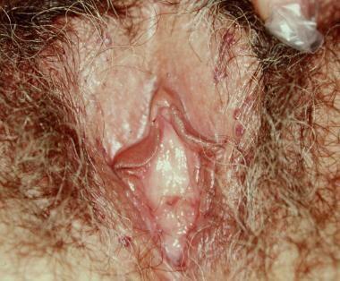 Benign vulvar lesions. Angiokeratomas.