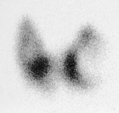 Technetium-99m pertechnetate thyroid scan shows a