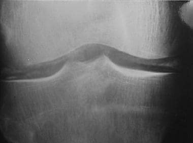 Anteroposterior radiograph of knee. Radiodense lin