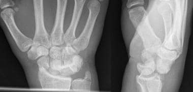 A transscaphoid, perilunate dislocation is present