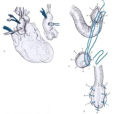 coronary artery bypass grafting technique: approach considerations, Cephalic Vein