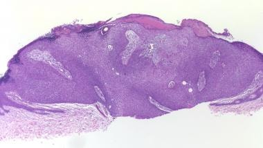 This juxtaepidermal poroma presents histopathologi