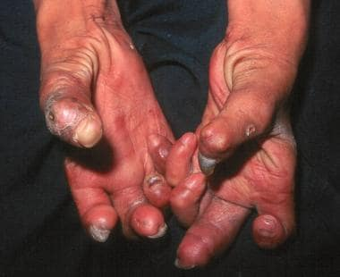 Hands with Z-thumbs, clawing, contractures, and sh