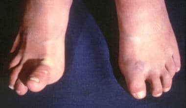 Patient with Ehlers-Danlos syndrome. Note the abno
