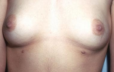 Supernumerary nipple (bilateral) in an adolescent