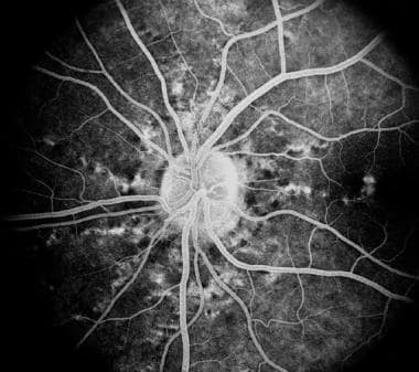 Late fluorescein angiography of the same eye as in