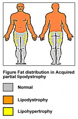 Fat distribution in acquired partial lipodystrophy