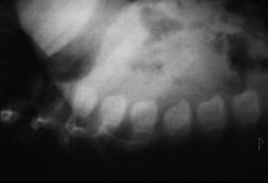 Morquio syndrome; lateral radiograph of thoracolum
