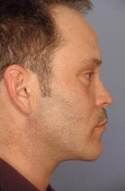 Subperiosteal facelift. After. Lateral view. His l