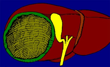 Drawing of final result of laparoscopic unroofing