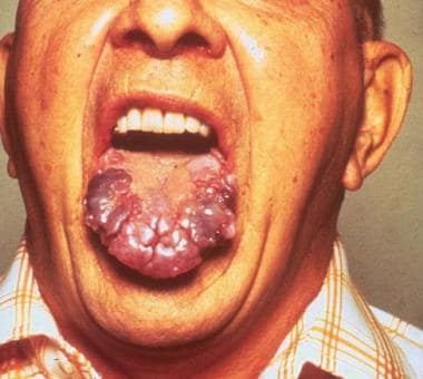 Amyloidosis infiltrating the tongue in multiple my