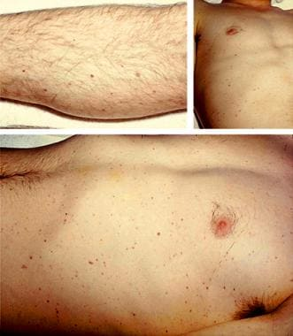 Scattered petechiae in a patient with acute mening