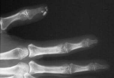 A radiograph of the distal digits demonstrating ca