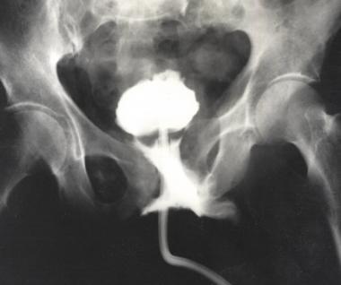 Urethrogram demonstrating partial urethral disrupt