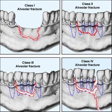 The various classes of alveolar fractures (per Cla
