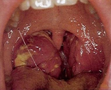 Acute bacterial tonsillitis is shown. The tonsils