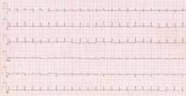 This ECG shows markedly decreased QRS voltage and