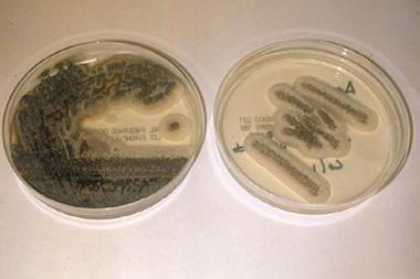 Glucose-peptone agar culture plates revealing colo