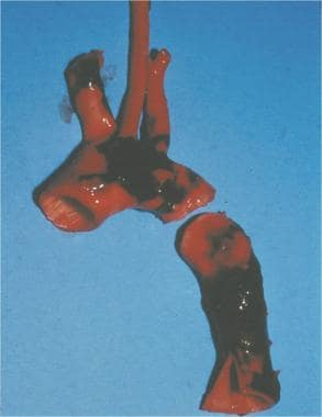 Aortic laceration. The typical location of an aort