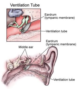 Ear tube in position in eardrum.