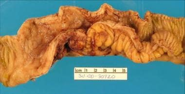 A Crohn stricture of the ileum demonstrating the m