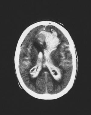CT scan in 82-year-old woman shows extensive subar