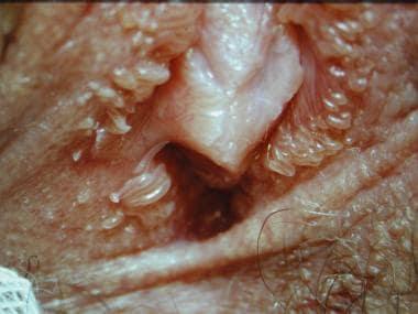 Benign vulvar lesions. Papillomatosis.