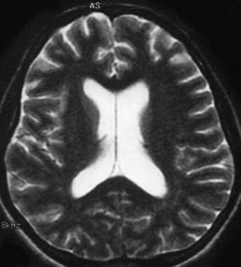 Acute bacterial meningitis. This axial T2-weighted