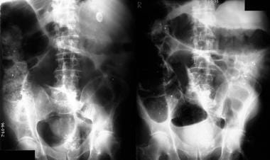 Left: Plain abdominal radiograph in a 58-year-old