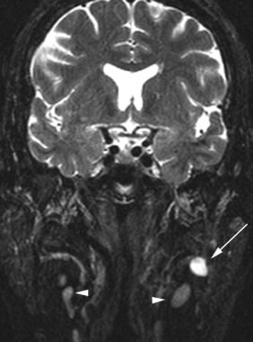 Coronal fat-saturated T2-weighted MRI demonstrates