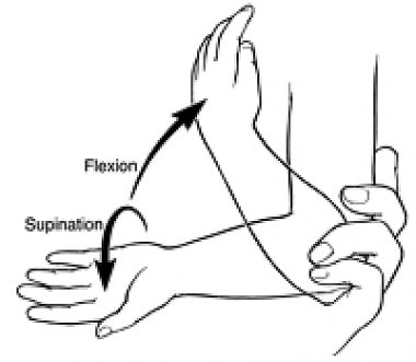 Reduction of subluxated radial head: supination-fl