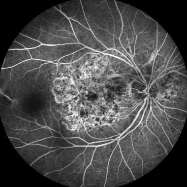 Right eye, midphase arteriovenous, showing chorioc