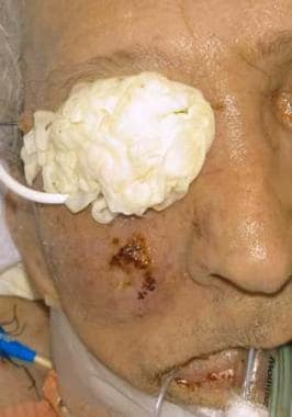 Clinical view of the face of a patient with rhinoc