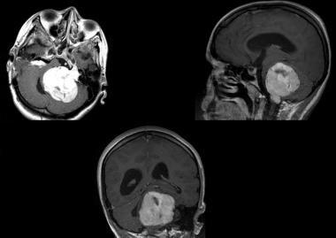 Vestibular schwannoma. T1-weighted MRI scan that d