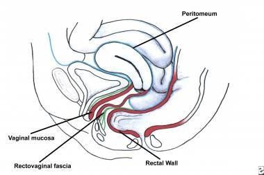 Enterocele and massive vaginal eversion. Posterior