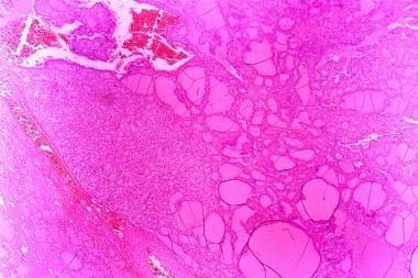 Histologic pattern of a rare lymph node metastasis