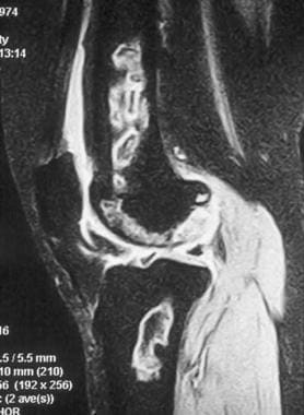 MRI of the distal femur and proximal tibia. This T
