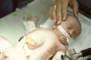 Baby with pentalogy of Cantrell.