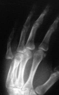 Metacarpophalangeal joint dislocation of the small