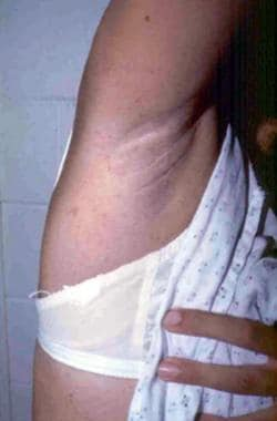Axillary freckling as seen in neurofibromatosis.